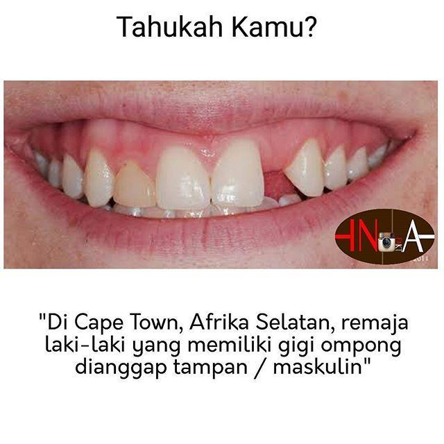 #kesehatan #gigi #ompong #fakta #sumateraselatan #sumaterabarat #malang #makassar #makassarcity #jayapura #jakarta #INDONESIA #infographic #info #infounik #all #asli #infakta