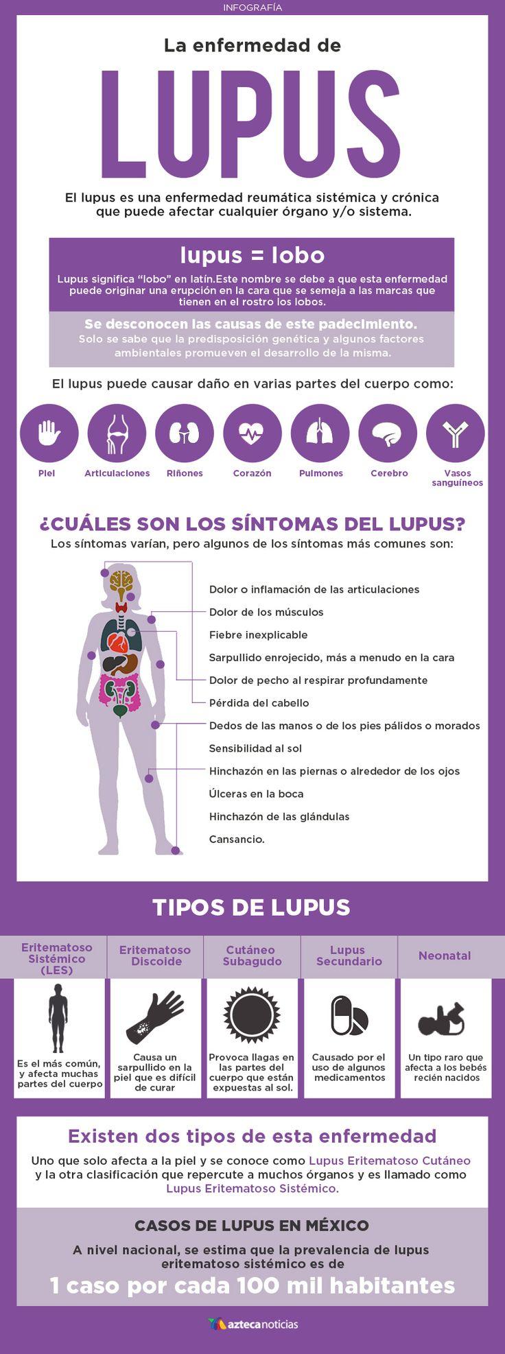 La enfermedad de Lupus #infografia