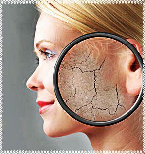 De piel seca a radiante en http://viviangilro.blogspot.com/2015/08/de-piel-seca-radiante.html