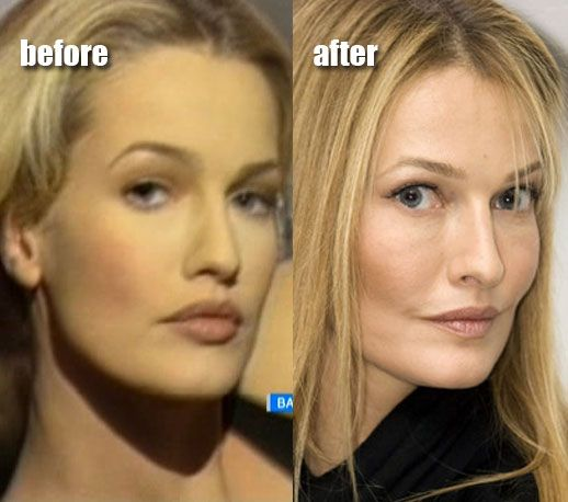 pro s and con s of plastic surgery Pros and cons list of plastic surgery search results.