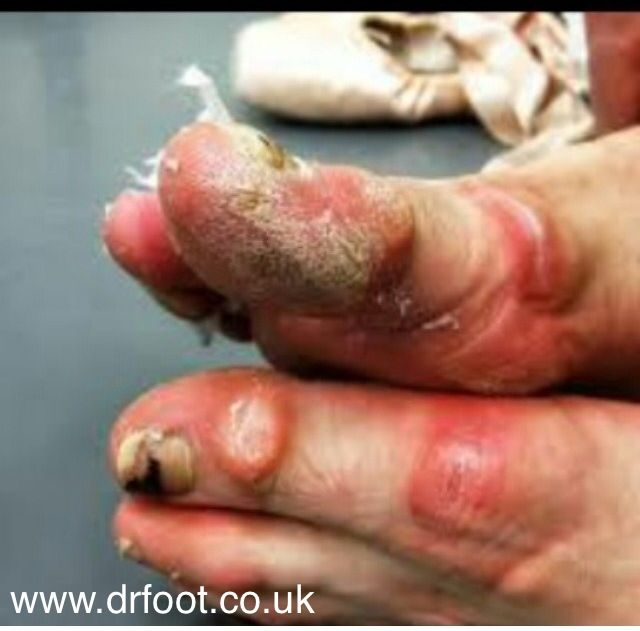 Neglected feet http://www.drfoot.co.uk #feet