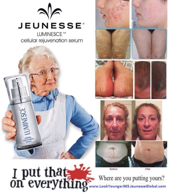 Luminesce Cellular Rejuvenation Serum uses stem cell technology to reverse & prevent aging.  It has been proven successful for acne, stretch marks, scars, balding, etc.  www.LookYounger365.JeunesseGlobal.com  or www.Facebook.com/LookYounger365.JeunesseGlobal