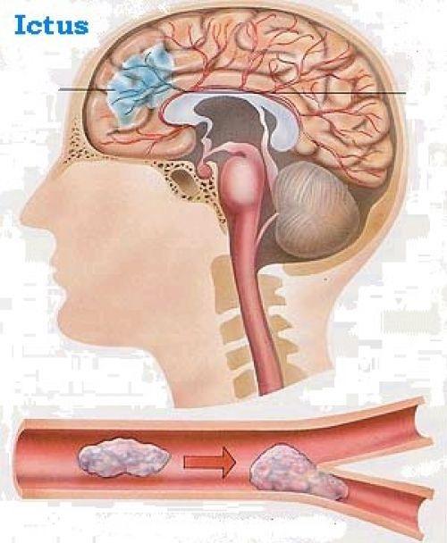 El ictus es una enfermedad cerebrovascular  que afecta a los vasos sanguíneos que suministran sangre al cerebro .  También se la conoce com...