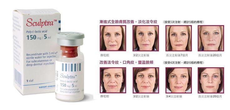 【Sculptra®3D 輪廓再造療程】 骨膠原是皮膚保持年青有彈性的主要結構,但當年齡漸增,骨膠原也會隨著逐漸流失和老化,繼而產生皺紋和面部凹陷! Sculptra又被稱為童顏針,能進入皮膚的深層部位,刺激自生的骨膠原製造,一個療程後可以補充大量流失了骨膠原的凹陷部位,改善由淺至深的面部皺紋及坑紋,達到保持臉部更細緻更年青的外表,令您重拾緊緻美肌和輪廓! 不用做手術,也能打造3D輪廓!每次的無創微整形服務都會由我們專業的醫生所注射! http://lnkd.in/d7eUAV