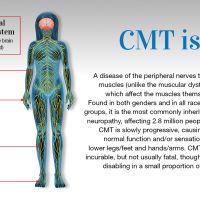 """Download/print: What are the Symptoms of CMT? First signs include frequent tripping, ankle sprains, clumsiness and """"burning"""" or pins-and-needles sensations in the feet or hands. Structural foot deformities such as high arches and hammertoes are common. Muscle wasting in the lower legs and feet..."""
