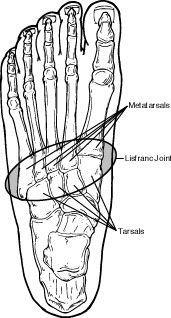 Lisfranc Injuries  http://www.dralexjimenez.com/lisfranc-injuries-uncommon-foot-injury-athletes/