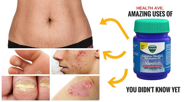 Removes Warts, Lightens Stretch Marks and MORE! READ These 17 Amazing Uses of Vicks VapoRub You DIDN'T KNOW YET