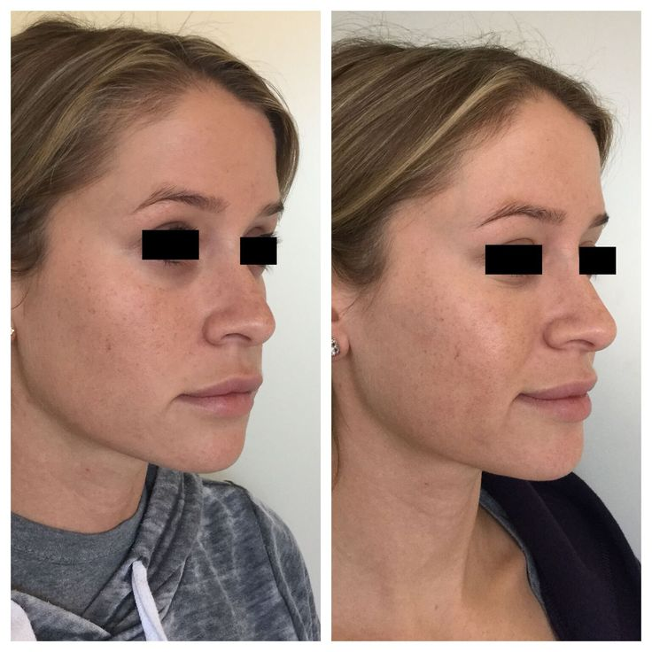 Before and After Non Surgical Cheek Enhancement Nose job