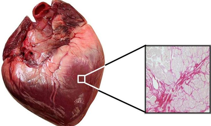 Study opens the door to personalized treatment for heart failure  Check more at https://scifeeds.com/news/study-opens-the-door-to-personalized-treatment-for-heart-failure/
