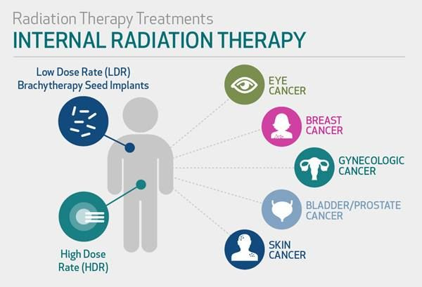Cancertreatment Internal Radiation Therapy Radiation Therapy