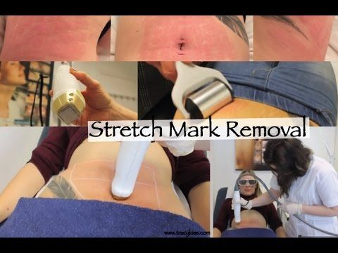 Stretch Mark Laser Removal With Tracy Kiss At The Pulse Light Clinic - YouTube