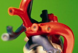 With congestive heart failure, or CHF, the heart has to work harder and is less efficient at delivering oxygen to the body. Blood can build up in different parts of the body, causing fluid accumulation in the lungs, arms, legs and gastrointestinal tract. Foods that you eat may worsen symptoms of CHF, such as swollen feet, fatigue, shortness of...