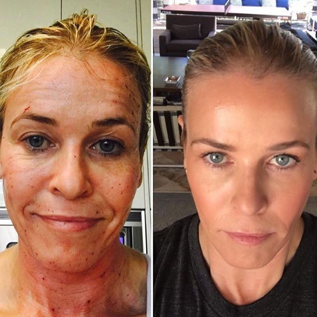 Perhaps you've seen this photo on social media? Chelsea Handler had Fraxel ablative laser facial resurfacing performed (CO2 Laser). There are several Fraxel laser intensities. Chelsea reports that she had this procedure performed at a higher laser intensity of 75. There is down time to be expected as you can see from her photo (but totally worth it as you can see from her after photo!). You can expect at least 5 days downtime. I'm currently offering a special for this procedure at a lower…