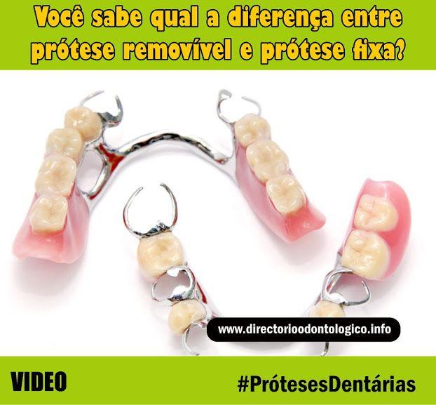 Próteses-Dentárias