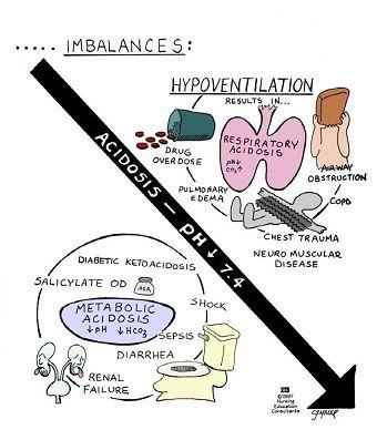 Acid/Base hypoventilation acidosis