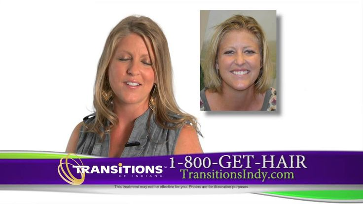 Transitions Of Indiana All Services Tv Spot For Hair Loss And Restoration