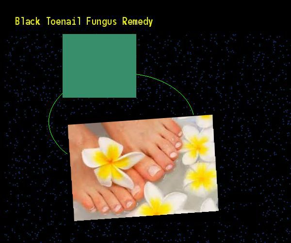 how to get rid of black toenail fungus