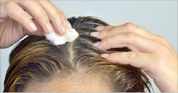 La caída del cabello y la aparición de las canas son problemas que afectan tanto a mujeres como a hombres. El cabello es un reflejo de nuestra salud, un cabello brillante, sedoso y fuerte significa que está recibiendo todos los nutrientes que necesita. El aceite de coco tiempo atrás era utilizado en remedios caseros para …