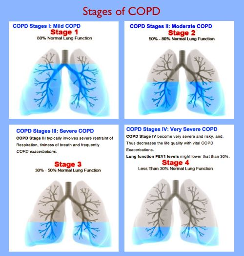 Image detail for -Stages of COPD http://www.omegaxl.com/blog/copd-omega-xl-helps/?GHW_affid=MLIFE