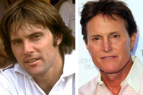 Bruce Jenner plastische Chirurgie vorher und nachher