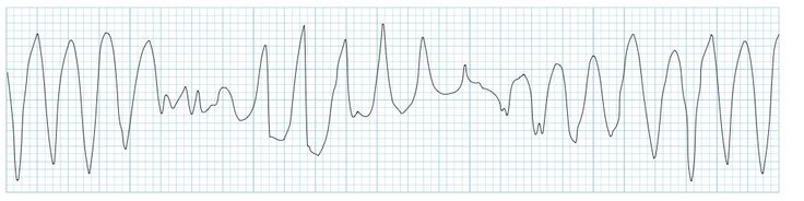 "Torsades de pointes (TdP) is a specific form of polymorphic ventricular tachycardia occurring in the context of QT prolongation; it has a characteristic morphology in which the QRS complexes ""twist"" around the isoelectric line. For TdP to be diagnosed, the patient has to have evidence of both PVT and QT prolongation."