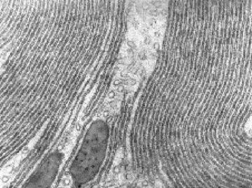 Retículo endoplasmático rugoso visto con MET.