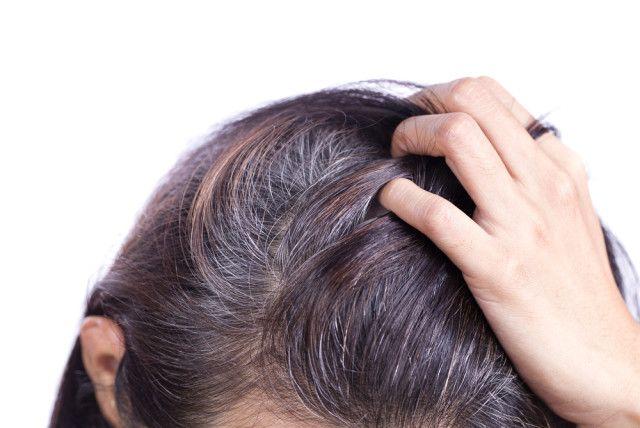 SOĞAN SUYU SAÇ BEYAZLARINI YOK EDİYOR - Sizler için saçların beyazlamasını önleyen hatta beyazlayan saçları yok eden bir kür araştırdık. İşte beyaz saçlara..