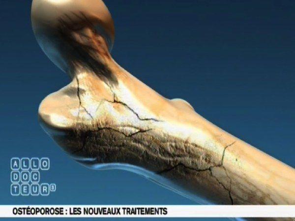 Fractures du col du fémur, du poignet, des vertèbres... L'ostéoporose est une maladie très fréquente qui touche en France près de trois millions de femmes, une femme sur trois après la ménopause. L'ostéoporose est une maladie silencieuse que les patients méconnaissent.