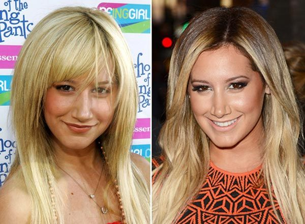 Ashley Tisdale Nose Job Before & After www.drgregpark.com