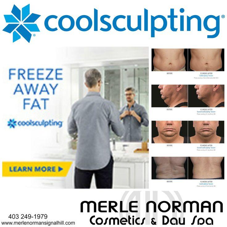 Coolsculpting at Merle Norman Signal Hill SW, Calgary www.coolsculptingcalgarysw.com
