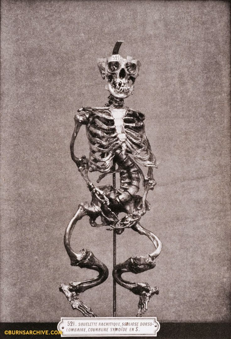 Deformed Skeleton Due to Rickets, 1879.