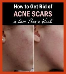 Acne Scar Removal - Where Does Acne Come From? * Check out the image by visiting the link. #acne