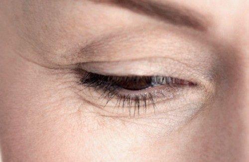 Comment atténuer les rides sous les yeux