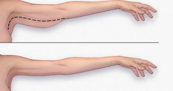 how to lose excess arm fat