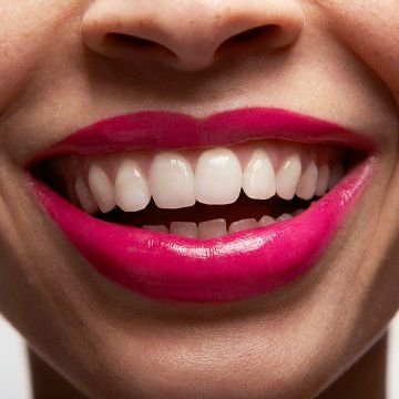 Brace yourself: Invisalign is a great solution for overbites and crooked teeth, but isn't right for everyone.