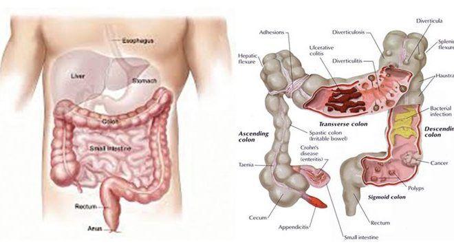 So viel Gift hast du im Körper – Mit nur 2 Zutaten 30 Pfund Toxine aus dem Darm spülen. Und so geht´s!