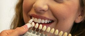 Sbiancamento Dei Denti: 18 Rimedi Casalinghi