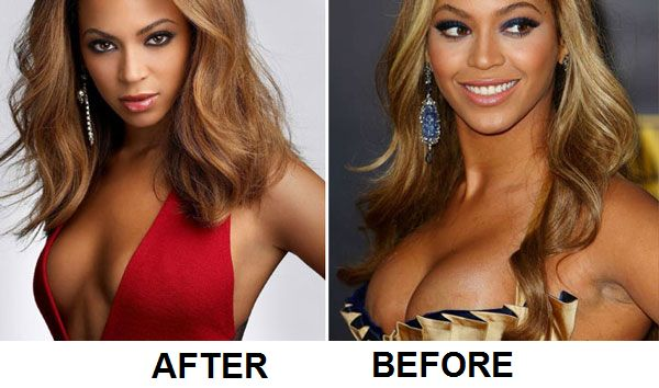 Beyonce's nose job before and after pictures
