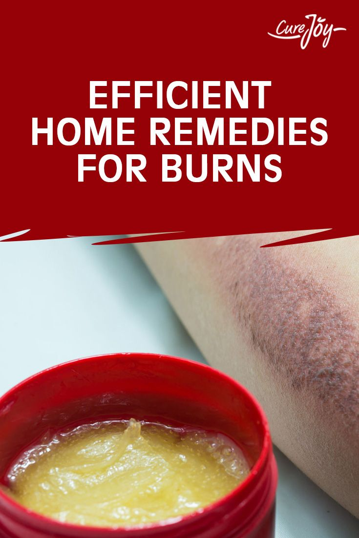 Efficient Home Remedies For Burns ==>