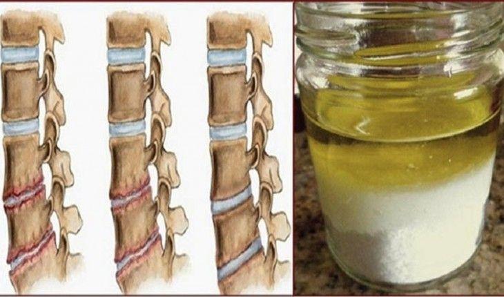 Rafforza le ossa ed elimina il mal di testa con questo rimedio naturale