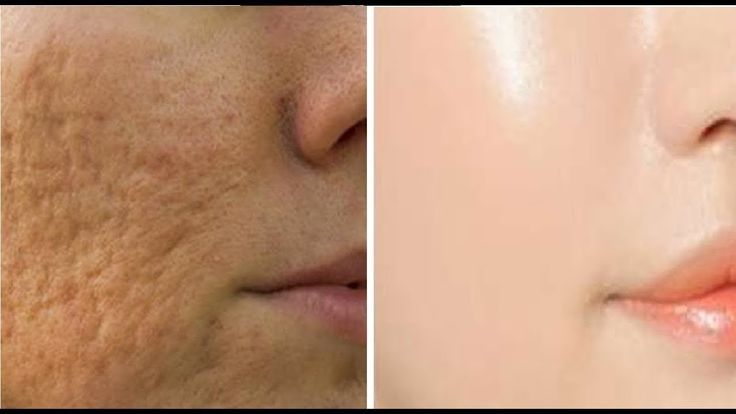 Get a Clean Face Free Of Pores Using This Amazing Natural Ingredient!
