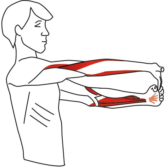 10 Best Elbow Injuries Images On Pinterest Physical Therapy