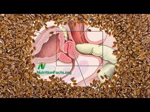 """Flaxseed vs. Prostate Cancer"" - by Dr. Michael Greger -  ""What happens when men with prostate cancer and prostatic intraepithelial neoplasia (PIN) are placed on a relatively low-fat diet supplemented with ground flaxseeds?"""