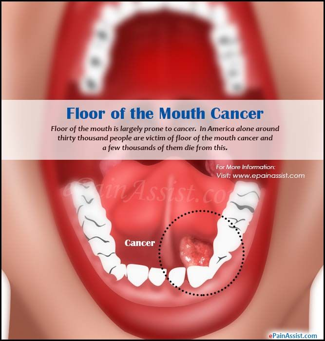 Floor of the mouth cancer face mouth and throat pain for Floor of mouth cancer