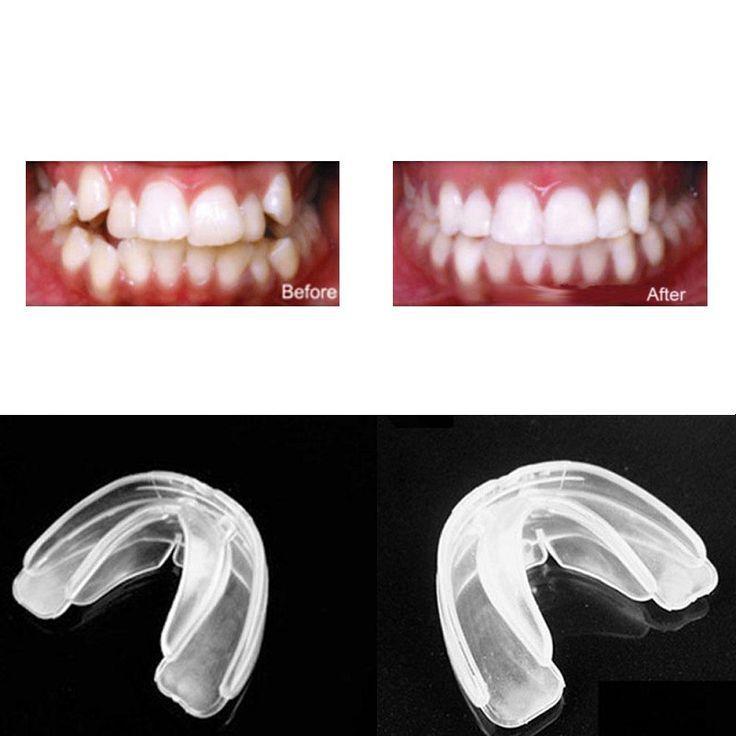 Orthodontic Straight Teeth System