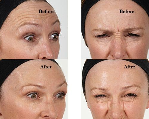 Anti wrinkle injections are very effective and can be used in conjunction with dermal fillers. Come in and meet Timeless Clinic for a no obligation free consultation. Get more information about http://www.timelessclinic.com.au/anti-wrinkle-injections/