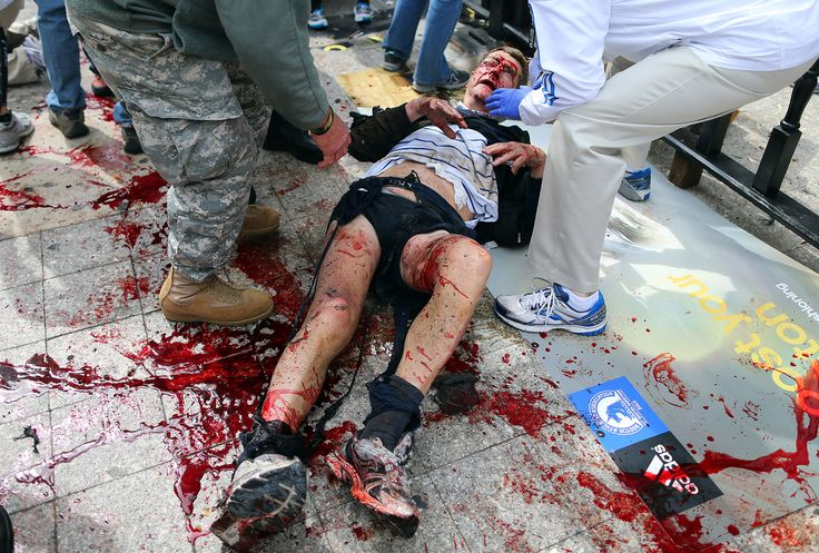 Boston Marathon Bombing (GRAPHIC PHOTOS) -A victim of the first explosion is helped on the sidewalk of Boylston Street, after two explosions went off near the finish line of the 117th Boston Marathon. (John Tlumacki / The Boston Globe / Getty Images)