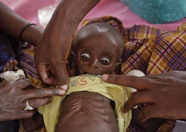 Lekarz w kenijskim obozie dla uchodźców bada 7-miesięczne dziecko z dotkniętej klęską głodu Somalii, 26 lipca. Fot. AP Photo/Schalk van Zuydam