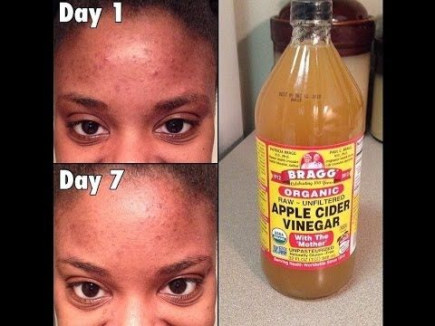 Drinking Apple Cider Vinegar Clear Skin