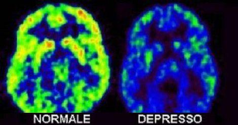 Inositolo – Efficace rimedio naturale per depressione, ansia, attacchi di panico e disturbo bipolare